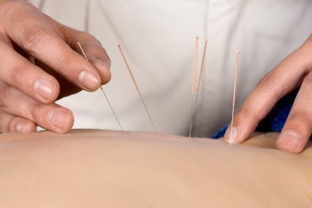20400619 s - How Does Trigger Point Dry Needling Work?