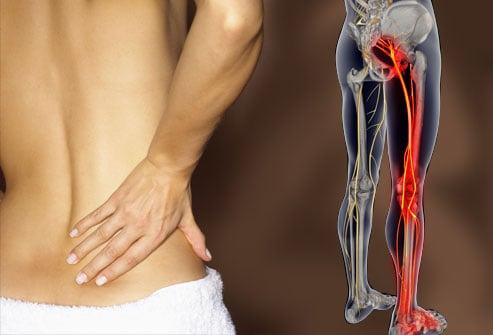 Sciaticatreatment zps7f2c6a3b - How Do I Treat My Sciatica Pain?