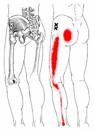 trigger point - How Do I Treat My Sciatica Pain (Part 6 of 6)