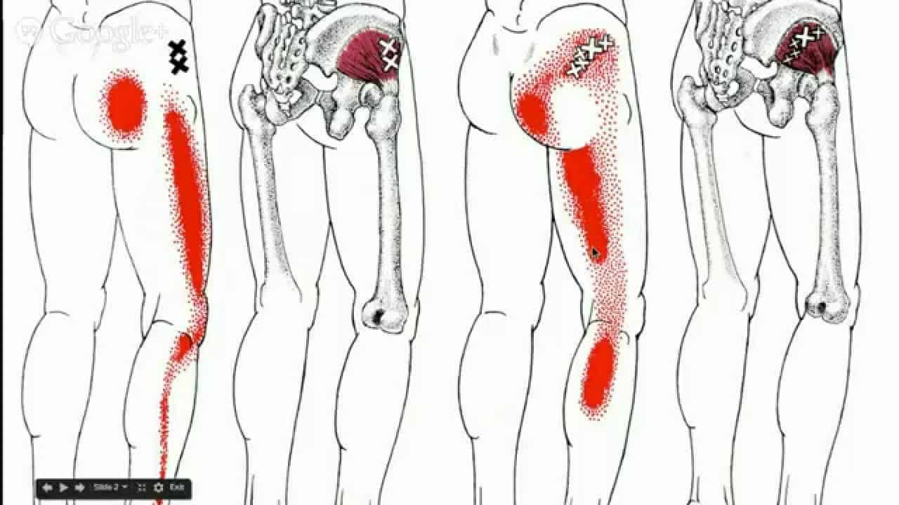 Should I Get An Injection in My Hip For My Bursitis?