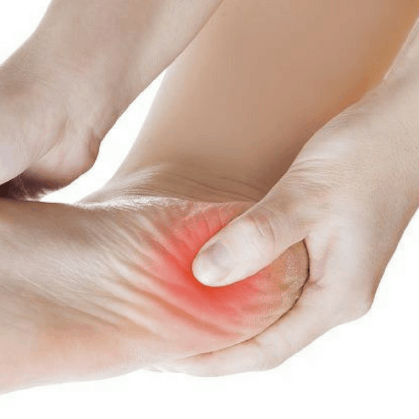 How To Treat Plantar Fasciitis Quickly With Physical Therapy In Bentonville
